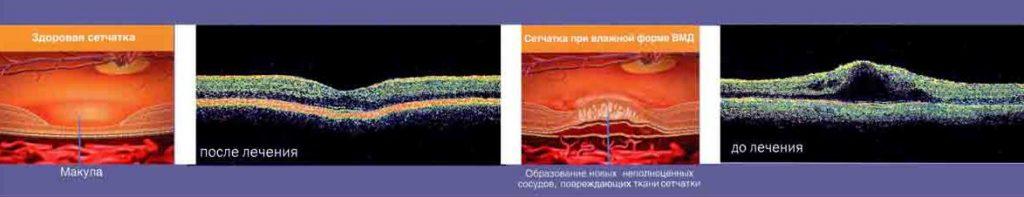 Лечение макулодистрофии