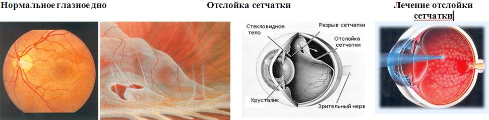Лечение отслойки сетчатки