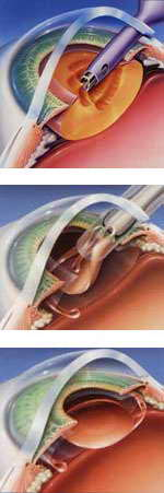 Лечение катаракты в Казани