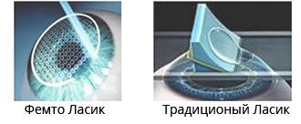 Лазерная коррекция зрения Femto LASIK