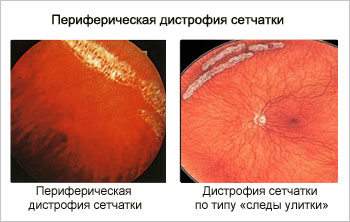 Периферическая дистрофия сетчатки и по типу улитки