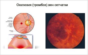 Окклюзия тромбоз вен сетчатки
