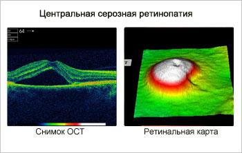 Центральная серрозная ретинопатия