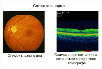 retina-ok
