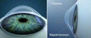 Keratokonus_3