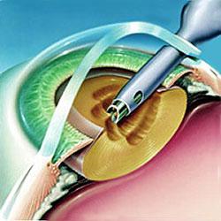 Факоэмульсификация катаракты в Казани