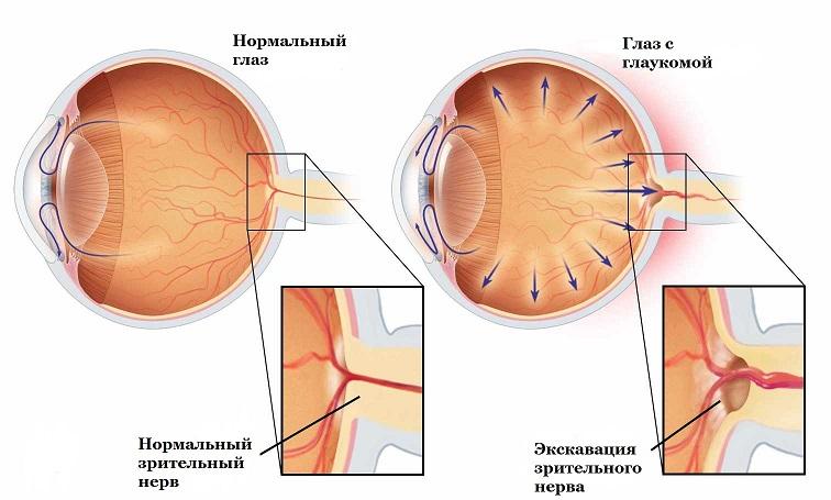 Способы лечения различных форм глаукомы