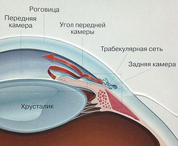 Закрутоугольная глаукома
