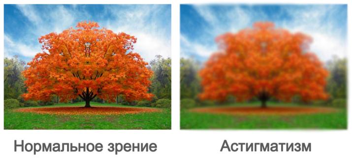 Лечение астигматизма в Казани