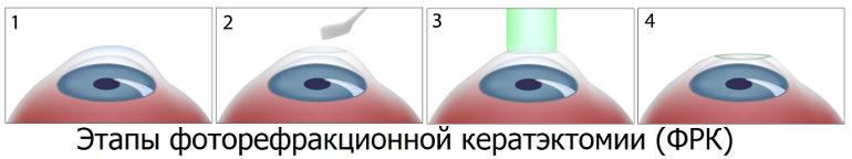 ФРК Казань