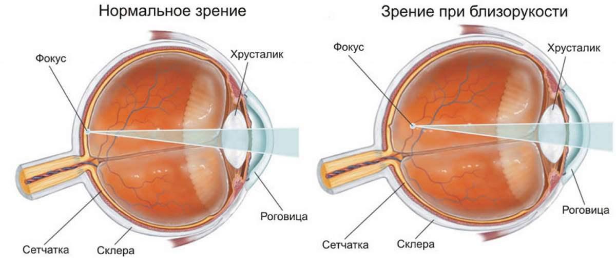 Лечение миопии
