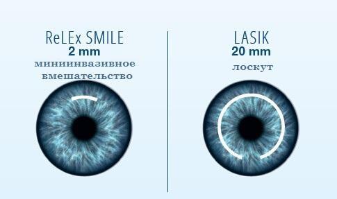 отличие смайл и лейсика - лазерная коррекция зрения в Казани