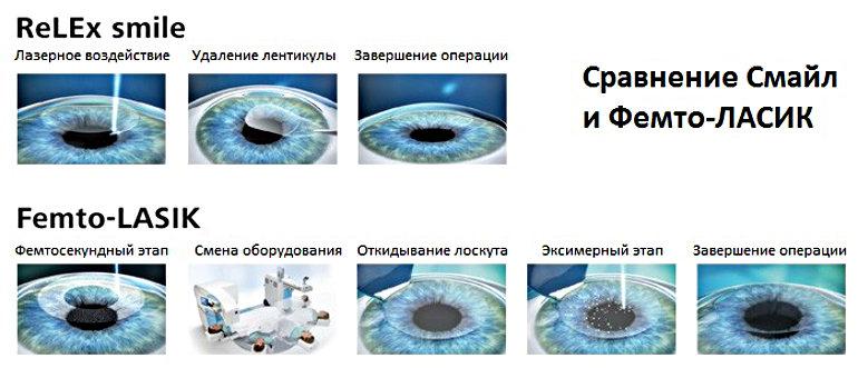 этапы лазерной коррекции смайл и фемтолейсик