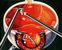 Лечение заболеваний сетчатки и стекловидного тела