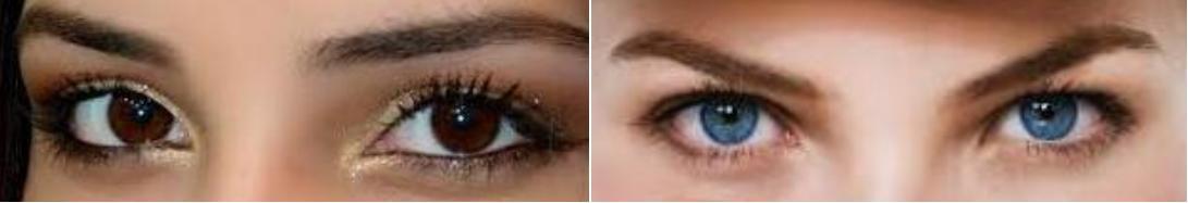 Смена цвета глаз лазером